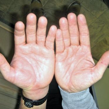 Carlos Morales_Both Hands